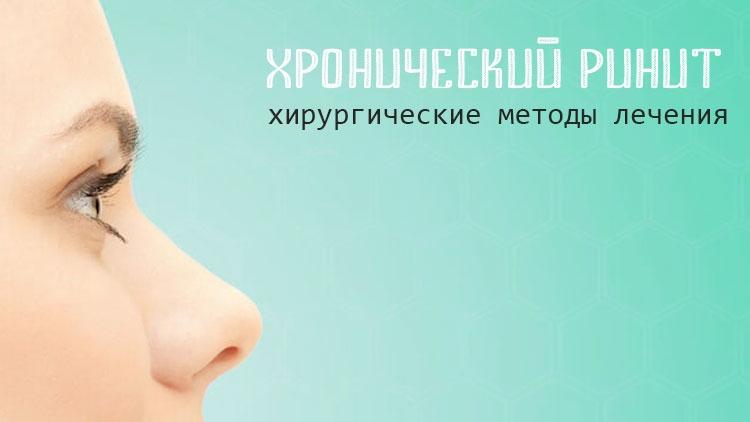 Конхопластика носовых раковин